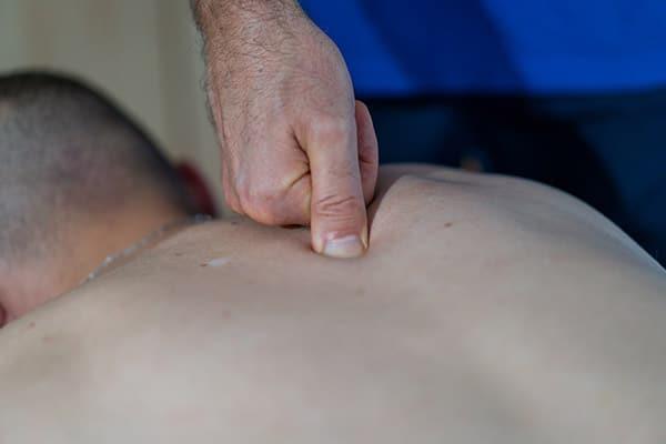 Fasziendistorsionsmodell Physiotherapie Binningen