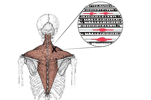 Triggerpunkt Physiotherapie Binningen