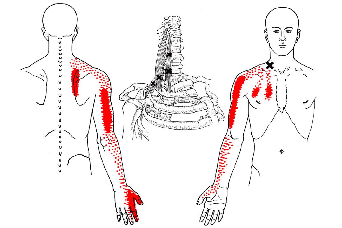 Triggerpunkt mm. scaleni Physiotherapie Binningen